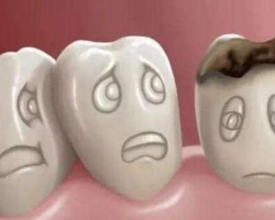 蛀牙怎么办立刻止疼 小偏方16秒见效缓解牙疼