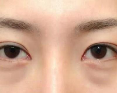 卧蚕和眼袋的区别 想祛眼袋得先了解形成原因