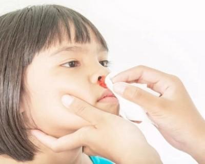 流鼻血是什么原因?小孩子流鼻血怎么快速止血