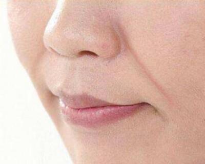 女人出现法令纹代表着衰老 如何去除法令纹?