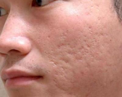 青春痘疤痕怎么去除(怎么消除脸上痘痘留下的疤痕?)